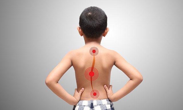 Physio Kompakt Skolisiosebehandlung